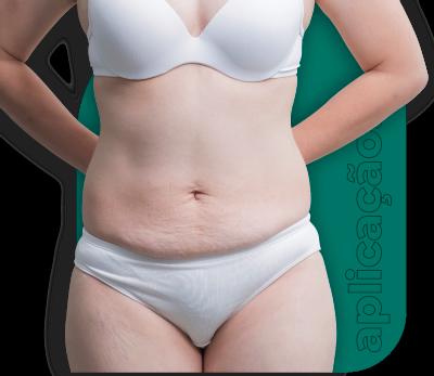 Trate gordura