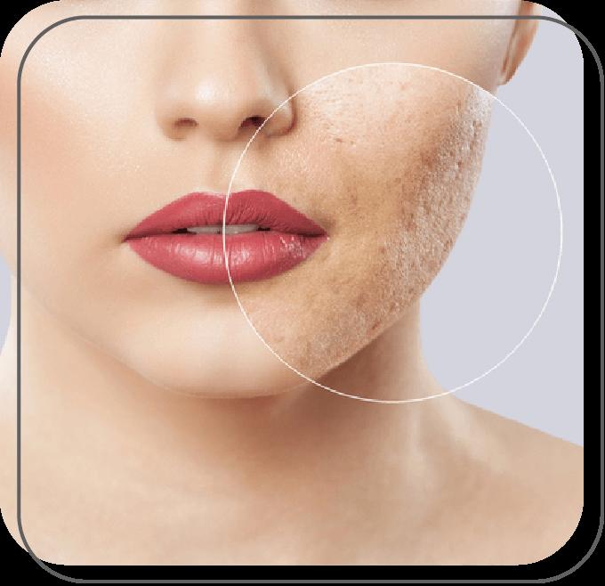 Acne e Cicatrizes