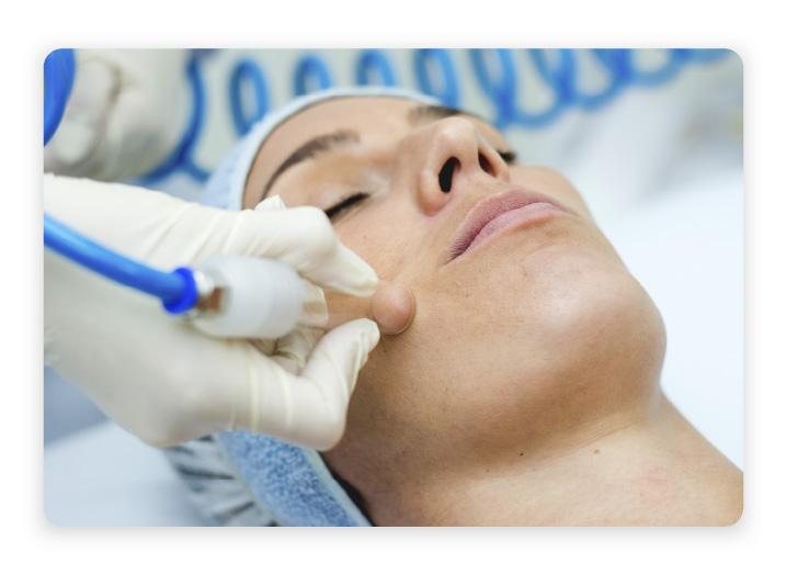 Vacuoterapia