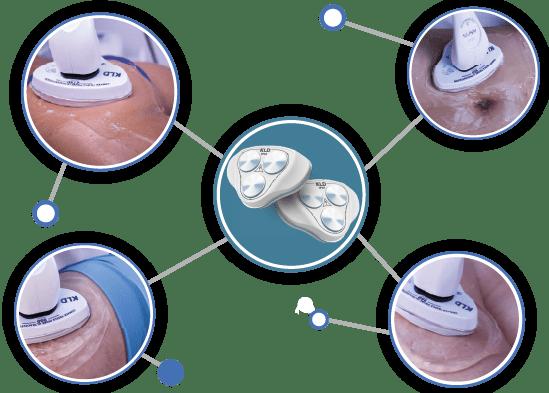 indicacoes de tratamentos kavys